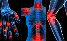 Romatizmal Hastalıklar Nelerdir, Romatoid Artrit Nedir, Kireçlenme Nedir?