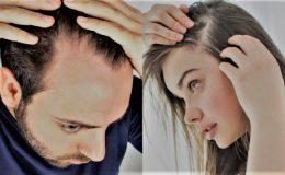 Saç dökülmesi nasıl önlenir ? Saç Dökülmesi için Bitkisel tedavi