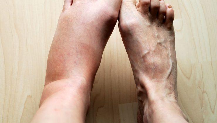 Yürürken ayak bileği şişmesi ve ağrısı nasıl geçer ?